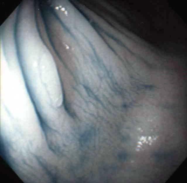 内視鏡部:内視鏡検査に関するQ&A   関東病院   …