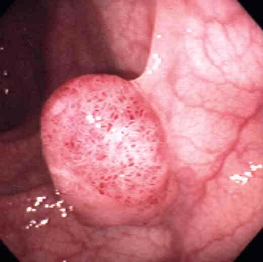 大腸内視鏡検査ってどんな検査?   医療ポータルサ …